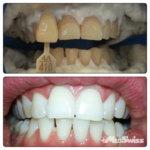 Отбеливания зубов до и после
