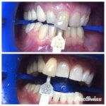 Отбеливания зубов