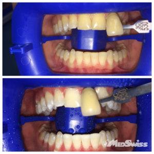 Отбеливания зубов – фото до и после