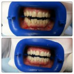 Отбеливание зубов ZOOM – до и после